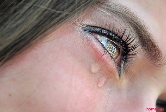 Почему слезятся глаза?