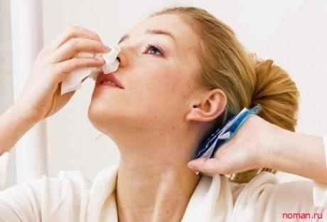 Рекомендации при носовом кровотечении